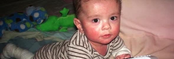 ezczema-baby-transformation