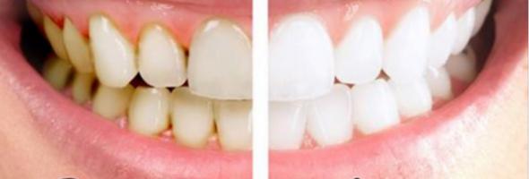 smemade-toothpaste-600x311